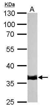 TPM1 Antibody in Western Blot (WB)