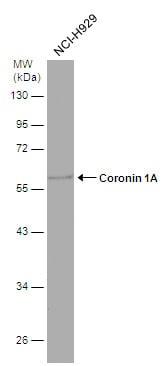 Coronin 1A Antibody in Western Blot (WB)
