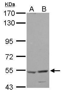 HARS Antibody in Western Blot (WB)