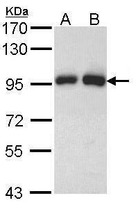 Gelsolin Antibody in Western Blot (WB)