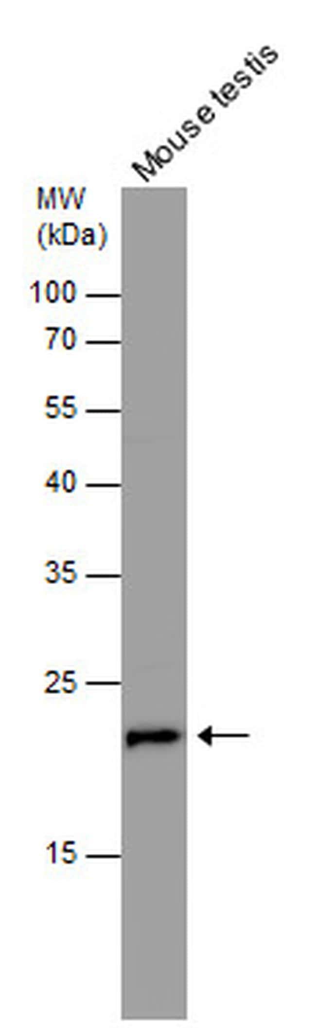 RAN Antibody in Western Blot (WB)