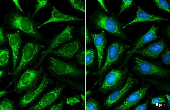 ACADVL Antibody in Immunocytochemistry (ICC/IF)