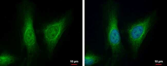 ALDH7A1 Antibody in Immunofluorescence (IF)