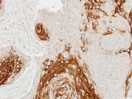 Cathepsin S Antibody in Immunohistochemistry (Paraffin) (IHC (P))