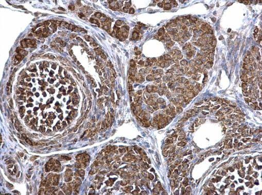 ECHS1 Antibody in Immunohistochemistry (Paraffin) (IHC (P))