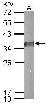ESD Antibody in Western Blot (WB)