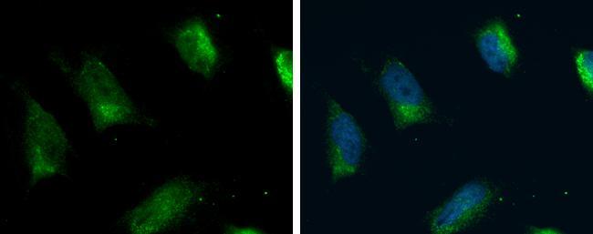 ACSL4 Antibody in Immunocytochemistry (ICC/IF)