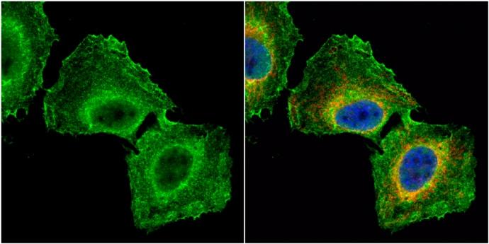 GNB1 Antibody in Immunocytochemistry (ICC)