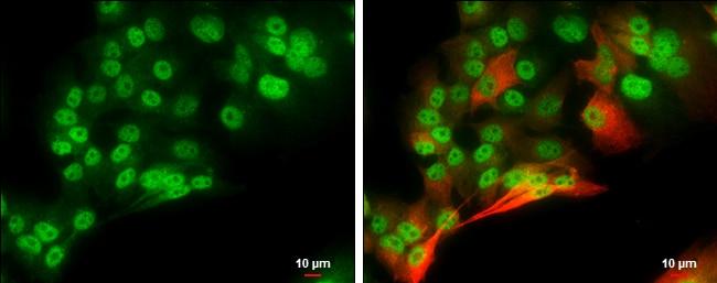 POU3F2 Antibody in Immunocytochemistry (ICC)