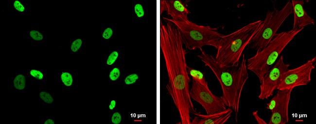SMARCC1 Antibody in Immunocytochemistry (ICC/IF)