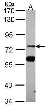 ZNF74 Antibody in Western Blot (WB)