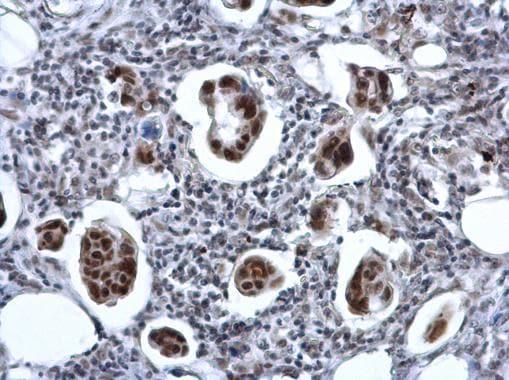 ZNF133 Antibody in Immunohistochemistry (Paraffin) (IHC (P))