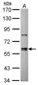 ZNF133 Antibody in Western Blot (WB)
