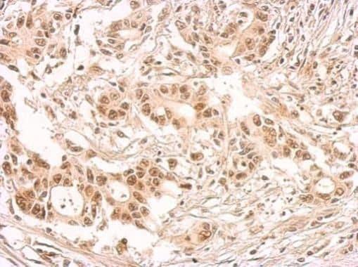 SRSF1 Antibody in Immunohistochemistry (Paraffin) (IHC (P))