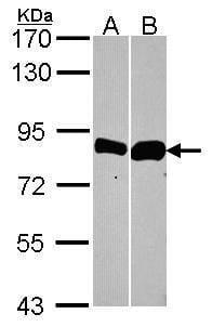 Thimet Oligopeptidase Antibody in Western Blot (WB)