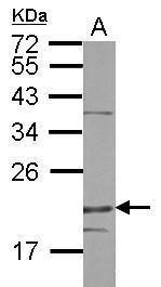 DENR Antibody in Western Blot (WB)