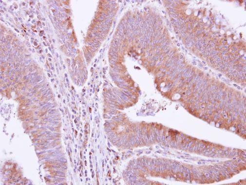 GRAP Antibody in Immunohistochemistry (Paraffin) (IHC (P))