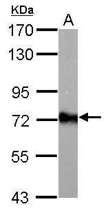 ACSL6 Antibody in Western Blot (WB)