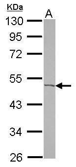 ACOT9 Antibody in Western Blot (WB)
