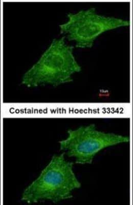 Coronin 3 Antibody in Immunofluorescence (IF)