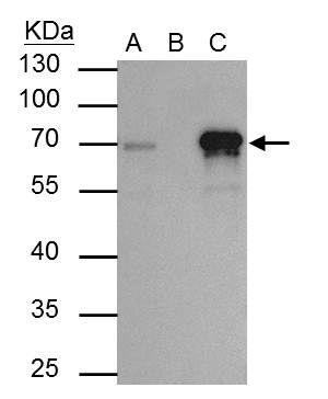 TRIM29 Antibody in Immunoprecipitation (IP)