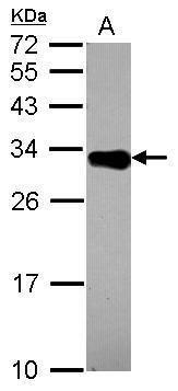 DECR2 Antibody in Western Blot (WB)