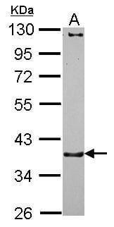 CTNNA3 Antibody in Western Blot (WB)