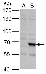 FBXL4 Antibody in Western Blot (WB)