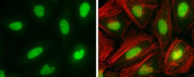 DNMT1 Antibody in Immunocytochemistry (ICC)