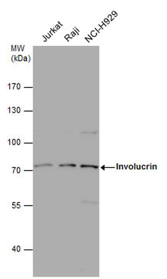 Involucrin Antibody in Western Blot (WB)