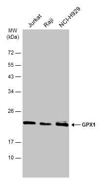 GPX1 Antibody in Western Blot (WB)