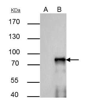 SOX6 Antibody in Immunoprecipitation (IP)