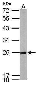 SOD2 Antibody in Western Blot (WB)