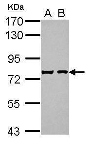 Chromogranin C Antibody in Western Blot (WB)