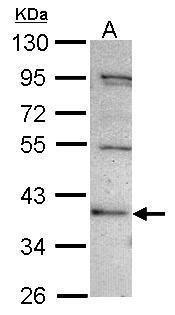 C2CD2 Antibody in Western Blot (WB)