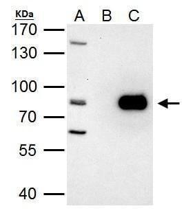 PRMT7 Antibody in Immunoprecipitation (IP)