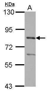 PRMT7 Antibody in Western Blot (WB)