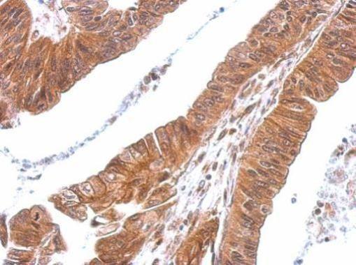 CXCL16 Antibody in Immunohistochemistry (Paraffin) (IHC (P))