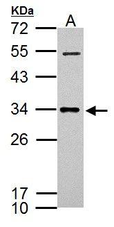 CXCL16 Antibody in Western Blot (WB)