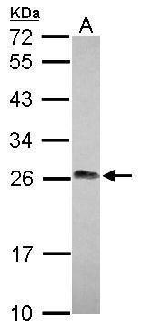LIN7A Antibody in Western Blot (WB)