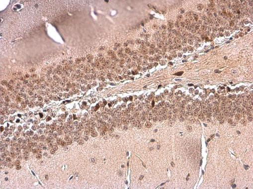 NFIX Antibody in Immunohistochemistry (Paraffin) (IHC (P))