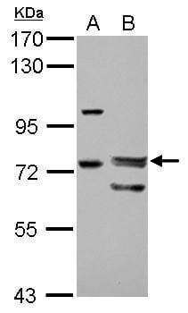 FOXP4 Antibody in Western Blot (WB)