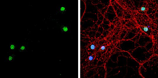 TBR1 Antibody in Immunocytochemistry (ICC/IF)