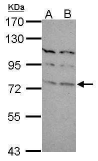 TBR1 Antibody in Western Blot (WB)
