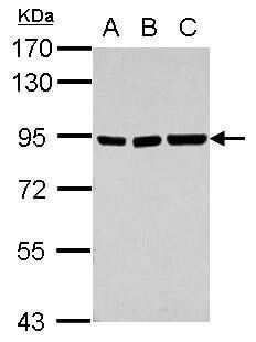 ZNF31 Antibody in Western Blot (WB)