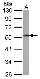 TRIM62 Antibody in Western Blot (WB)