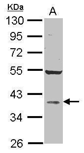 AKR1D1 Antibody in Western Blot (WB)