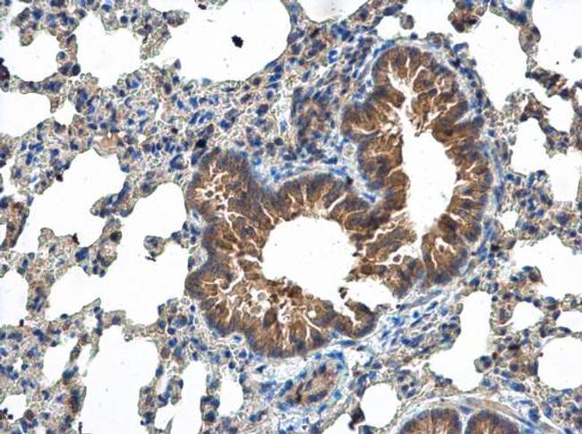 MCTS1 Antibody in Immunohistochemistry (Paraffin) (IHC (P))