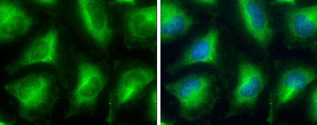 GPD1 Antibody in Immunocytochemistry (ICC)
