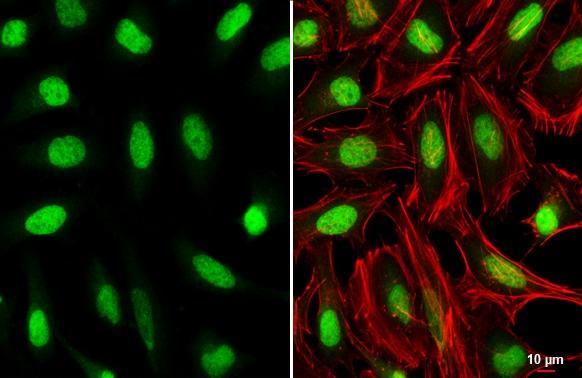 HOXC10 Antibody in Immunocytochemistry (ICC/IF)